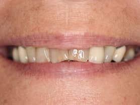 Cas clínic abaden dentistas María Abans