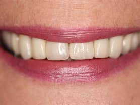 Cas clínic abaden dentistas María Després