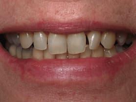 Cas clínic abaden dentistas Sara Abans
