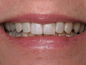 Cas clínic abaden dentistas Sara Després
