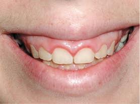 Caso clínico abaden dentistas Mercè Antes