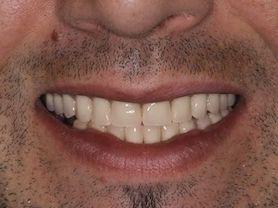 Caso clínico abaden dentistas Raul H Después
