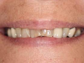Caso clínico abaden dentistas María Antes