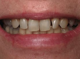 Caso clínico abaden dentistas Sara Antes