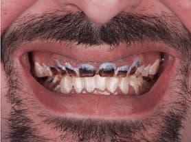 Caso clínico abaden dentistas Juanjo Antes