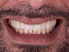 Caso clínico abaden dentistas Juanjo Después