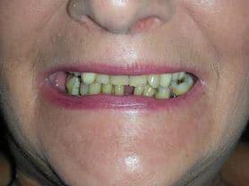 Caso clínico abaden dentistas Isabel Antes