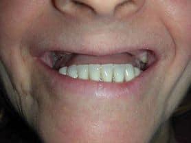 Caso clínico abaden dentistas Juana Antes