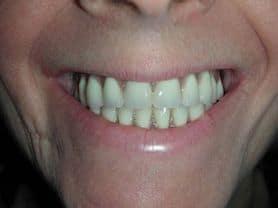 Caso clínico abaden dentistas Juana Después