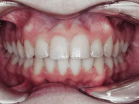 Caso clínico abaden dentistas Paz Después
