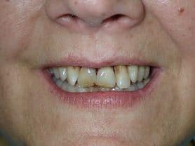 Caso clínico abaden dentistas Pilar Antes