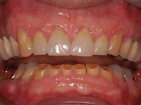 Caso clínico abaden dentistas Pablo Antes