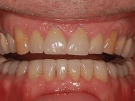 Caso clínico abaden dentistas Pablo Después
