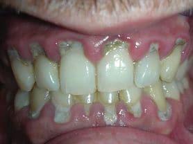 Caso clínico abaden dentistas Manuel Antes