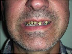 Caso clínico abaden dentistas Jose Manuel Antes
