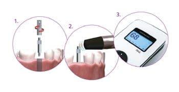 Osstel - Medidor de la estabilidad de los implantes