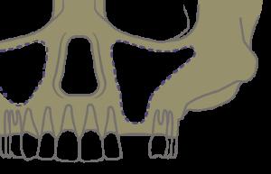 Implantes dentales sin hueso