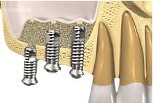 3. Colocación de los implantes dentales