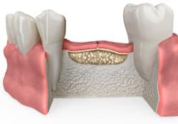 2. Cirugía de injerto de hueso