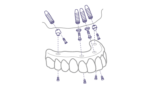 5. Intervención quirúrgica