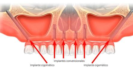 implantes-cigomáticos