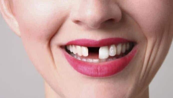 Consecuencias de la falta de dientes