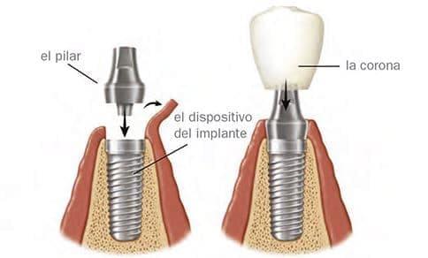 Partes y componentes de un implante dental