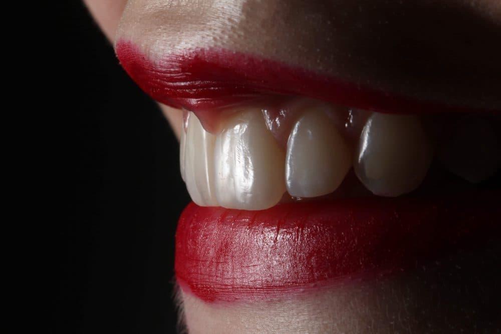 ¿Cómo solucionar la atrición dental?