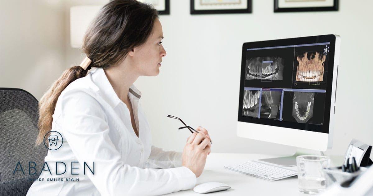 ¿Por qué debo escoger Abaden si quiero colocarme implantes dentales?