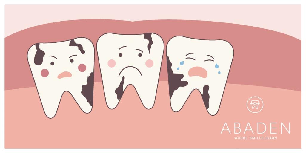Prevenir la caries dental