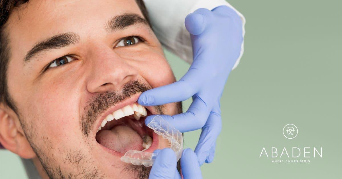 ¿La ortodoncia es un tratamiento para toda la vida?