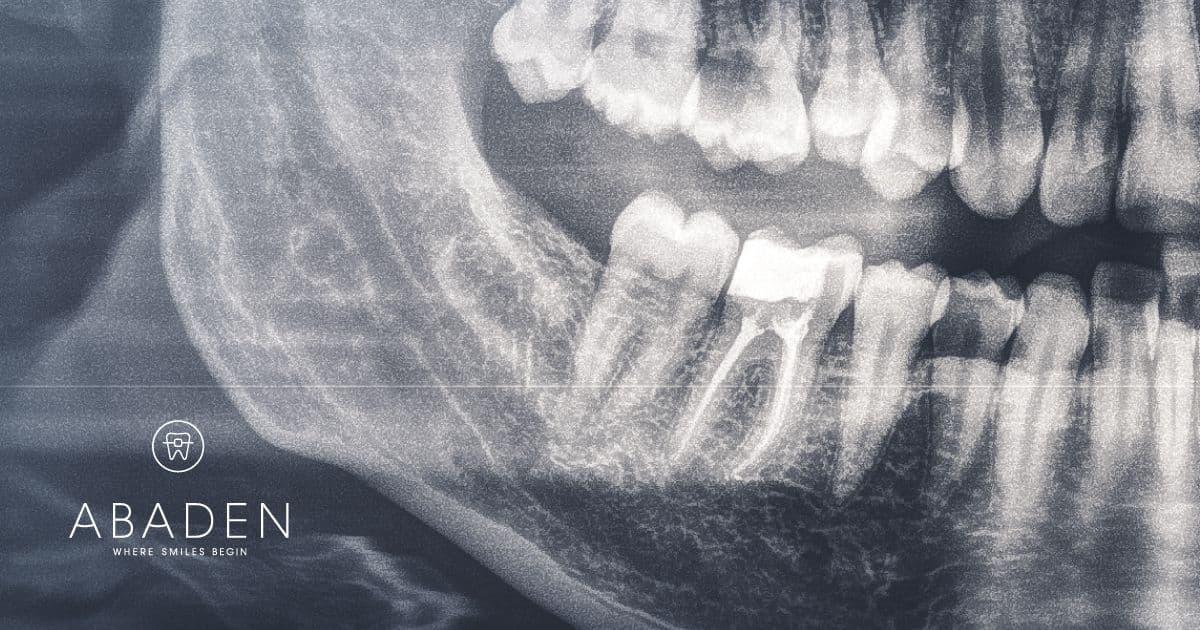 Cómo es la endodoncia multirradicular