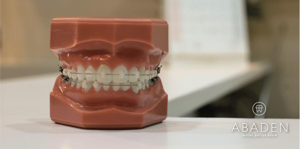 Limpieza dental durante el tratamiento de ortodoncia fija