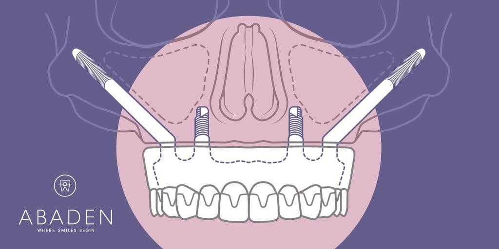 Cómo son los implantes cigomáticos