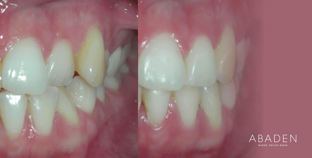 Ortodoncia antes y después: casos de éxito
