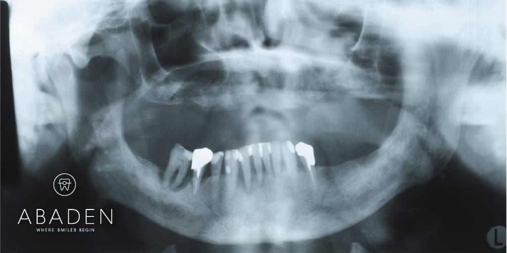 Peligros de la falta de dientes