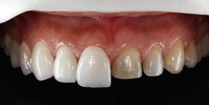 precio carillas dentales
