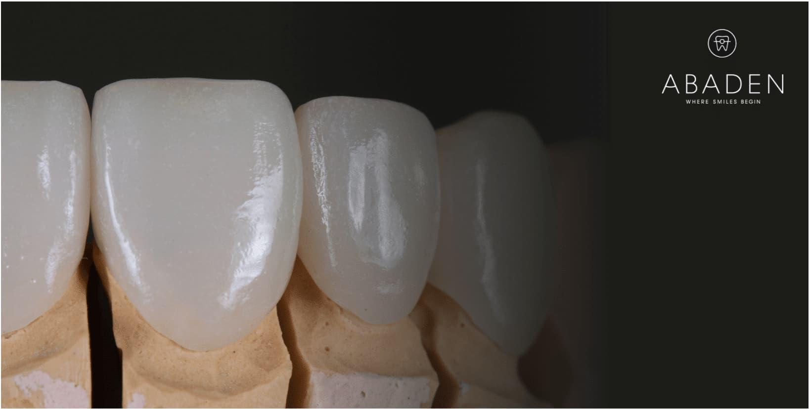 ¿Cuál es el precio de carillas dentales?