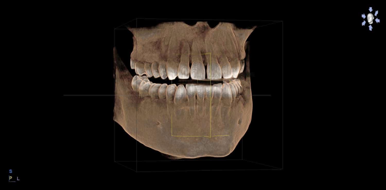 Ventajas de la radiología 3D