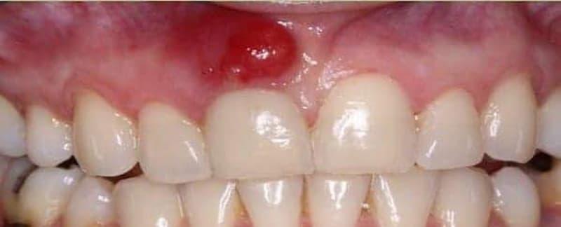 ¿Que es el absceso periapical?