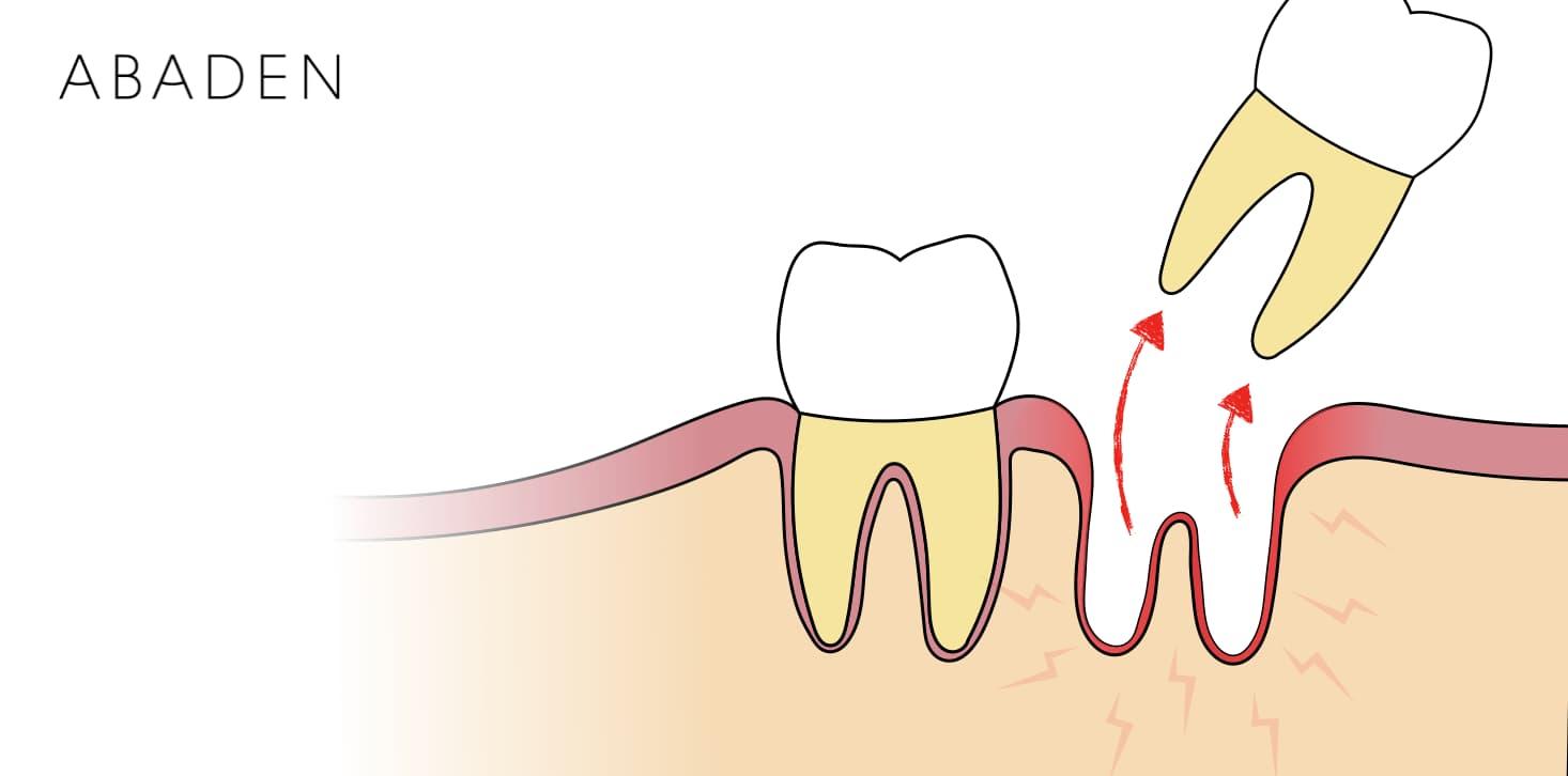 Qué es la Alveolitis Dental