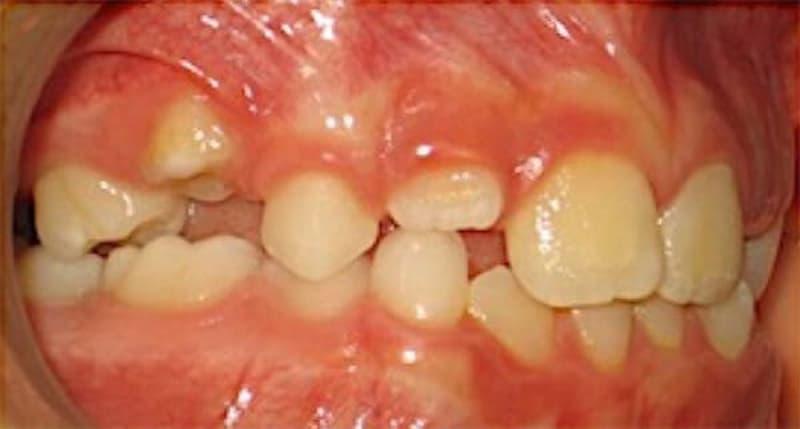 Causas de la anquilosis dental y tratamiento