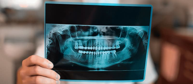 ¿Qué es la atrofia maxilar?