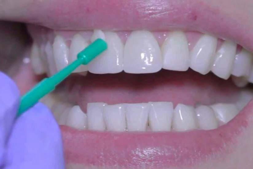 ¿Qué es un barniz dental?