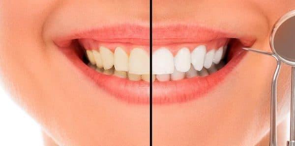Precio Blanqueamiento Dental 2021
