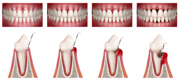 bolsa periodontal