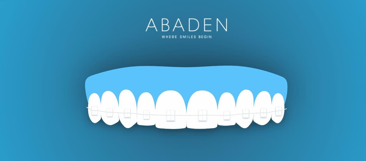 Brackets transparentes – ¿Qué ventaja tienen frente a otro tipo de ortodoncia?