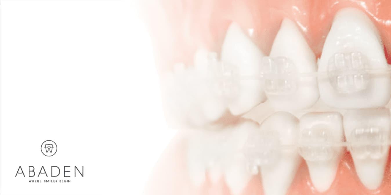 Brackets Zafiro: ¿Por qué utilizar esta ortodoncia?