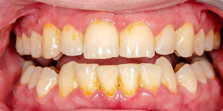 ¿Qué es un cálculo dental?