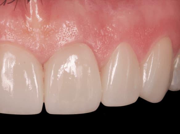 ¿Es necesario tallar el diente para colocar una carilla dental?